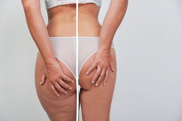 frau vorher nachher abnehmen abspecken diät dicker und dünner oberschenkel po hintern vergleich