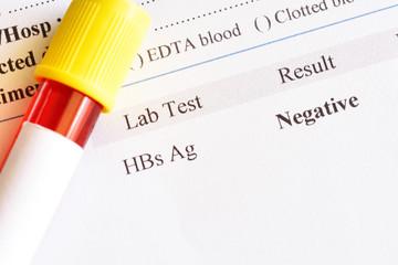 Hepatitis B virus negative test result with blood sample tube