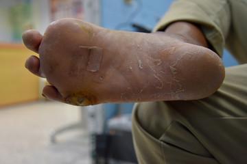 diabetes foot,