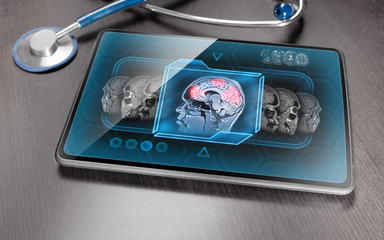 Medical tablet displaying scan of brain activity