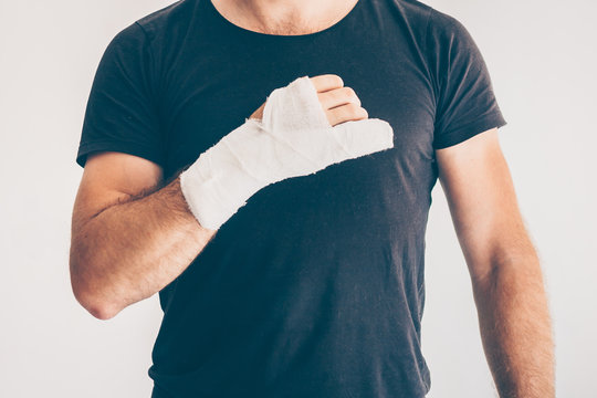 A man with an industrial hand injury - non-compliance with safety precautions and safety precautions