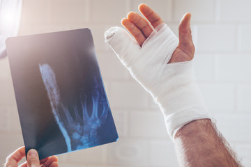 X-ray picture of the hand on the lumen