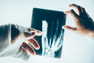 Doctor surgeon or traumatologist and patient are studying X-ray picture of a fractured hand on the lumen
