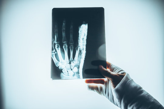 The patient is examining an x-ray of the hand