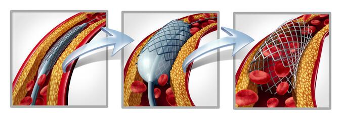 Coronary Stent Diagram