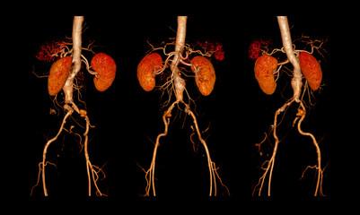 CTA ABDOMINAL AORTA AND FEMORAL RUN OFF  FINDINGS:  infrarenal aortic aneurysm with partial thrombosis 3D rendering..