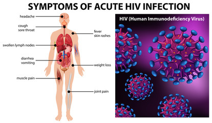 Symptoms of acute HIV infection