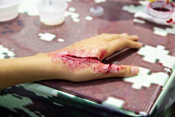 Obraz The fake wound on the hand for the boy, Dress the wound special effect by professional - fototapety do salonu