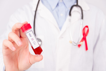 Obraz AIDS / HIV disease concept. Doctor wearing white coat and blue rubber medical gloves with pinned red ribbon as a symbol of aids / hiv and stethoscope holding positive tumor marker / blood test. - fototapety do salonu