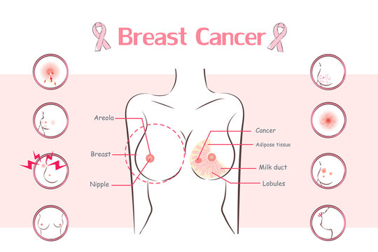 woman with breast cancer symptom