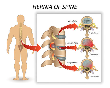Anatomy medical diagram of a human spine with the hernia and description of all sections and segments of the vertebrae. Vector illustration.