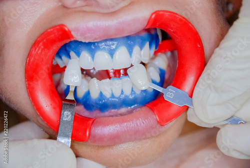 Dentist Finishing Teeth Whitening Procedure With Young Woman See A