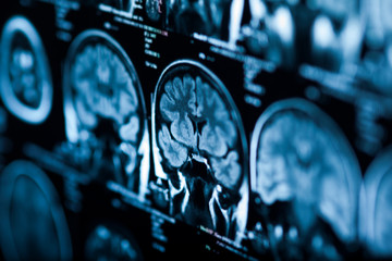 The X-ray of the human brain