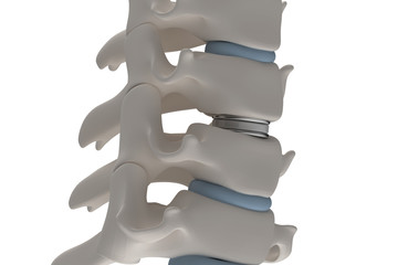 Artificial intervertebral disc prosthesis is installed between the cervical vertebrae isolated on a white 3d render image
