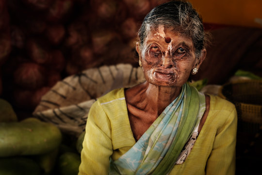 Portrait of elderly Indian woman with her face deformed and scared after acid attack. Scary woman selling groceries on Indian bazaar.