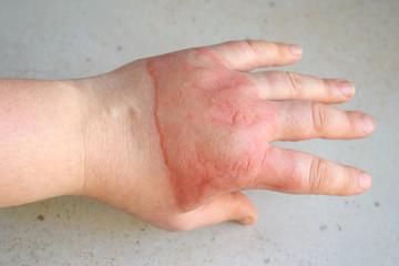 Horrible second degree burns on female hand on white background