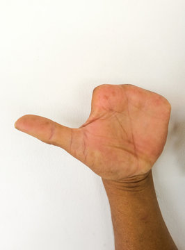 Amputate finger of people from accident.
