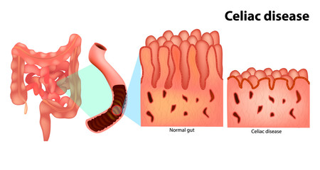 Coeliac disease or celiac disease (gluten-sensitive enteropathy), sometimes called sprue or coeliac.