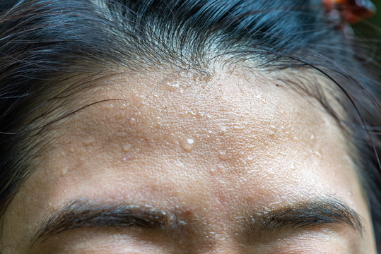 Close up sweat on forehead