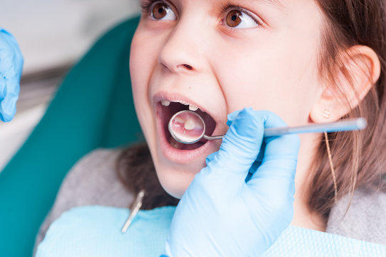 Treatment of teeth close-up. Children's dentistry