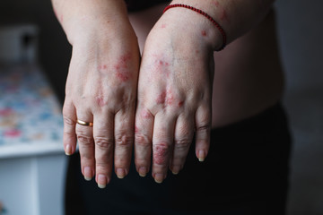 Psoriasis vulgaris on the womans hands with plaque, rash and patches on skin. Autoimmune genetic disease. health concept