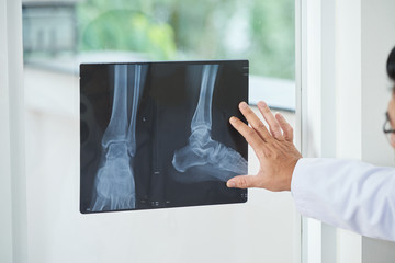 Unrecognizable medical practitioner examining X-ray picture of legs near window in doctor's office