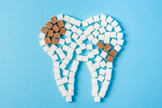Sugar destroys the tooth enamel and leads to tooth decay. Tooth made of white and caries made of brown sugar cubes.