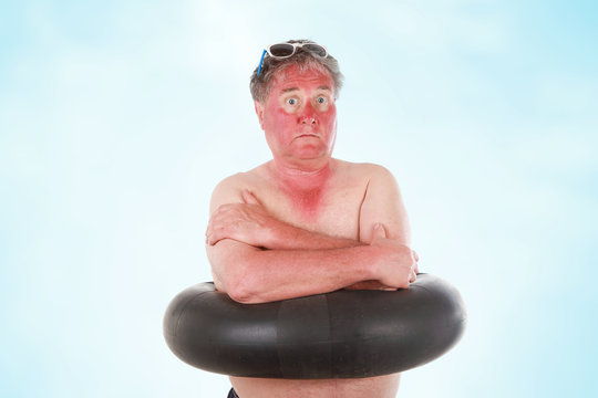 Sunburned man with sunglasses lines and inner tube