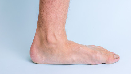 The left leg of a man with signs of joint disease and flat feet.