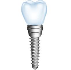 Illustration of dental implant isolated on white background
