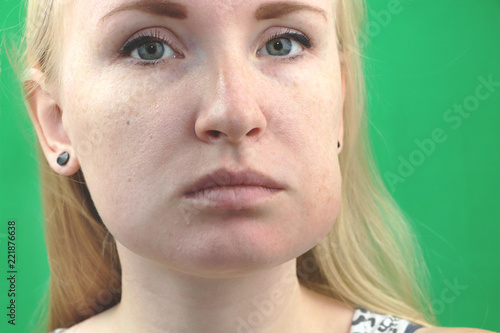 Teeth Problem  Gumboil, flux and swelling of the cheek  Closeup Of