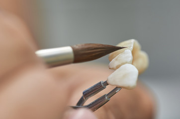 Closeup of dental technician putting ceramic to dental implants in his laboratory.