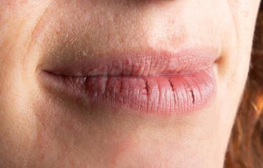 Macro of female cracked lips