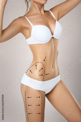45ad78d4fa Woman torso in underwear with medical marks for plastic surgery or  liposuction