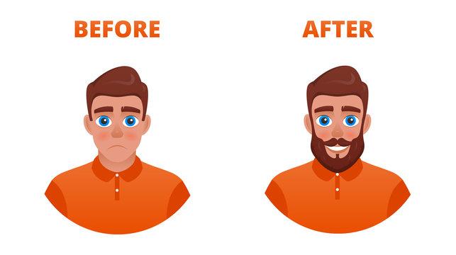 Beard growth concept