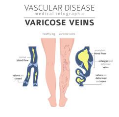 Vascular diseases. Varicose veins symptoms, treatment icon set. Medical infographic design