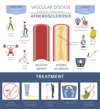 Vascular diseases. Atherosclerosis symptoms, treatment icon set. Medical infographic design