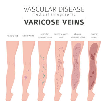 Vascular diseases. Varicose veins symptoms, treatment icon set. Medical infographic design