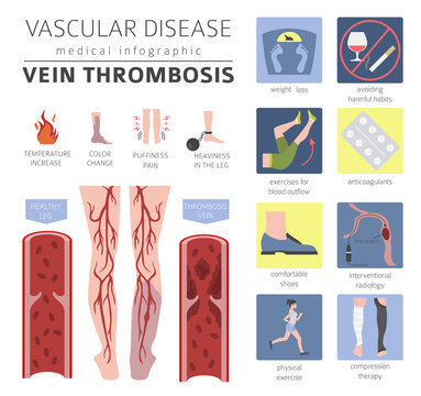 Vascular diseases. Vein thrombosis symptoms, treatment icon set. Medical infographic design