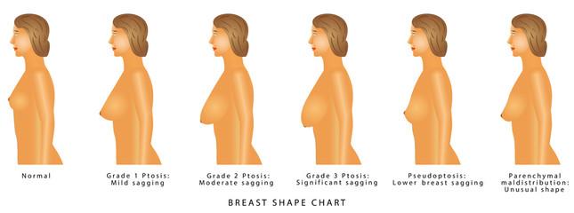 Breast Shape chart