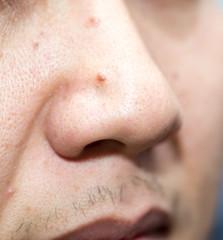 nose close up man