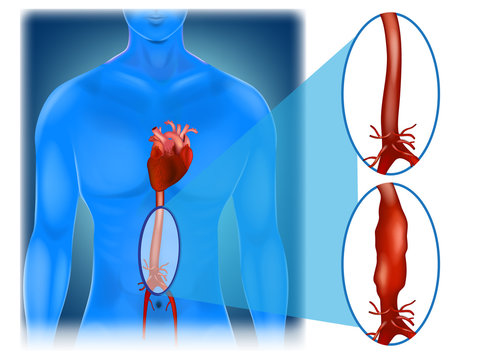 Abdominal aortic aneurysm - location and appearance.