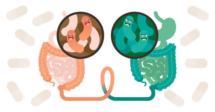 Fecal microbiota transplant (FMT) or stool transplant procedure concept