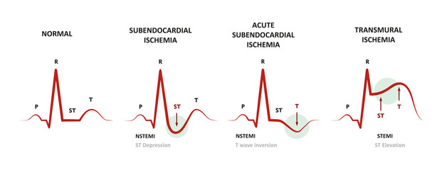 Diagnosis of Myocardial Ischemia (NSTEMI, STEMI) EKG of subendocardial ischemia and transmural ischemia