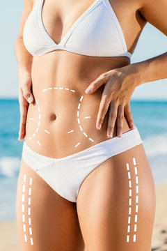 Conceptual liposculpture with surgical body contouring lines.