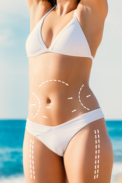 Conceptual surgical dotted incision lines on female body.