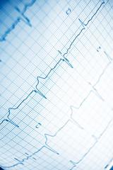 Electrocardiogram close up