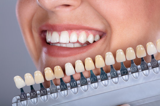 Woman Matching Shade Of The Implant Teeth