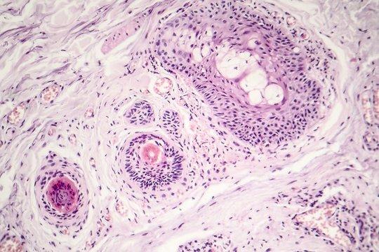 Basal cell carcinoma, skin cancer, light micrograph, photo under microscope