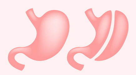 Laparoscopic Gastrectomy Gastric Sleeve / weight loss surgery vector